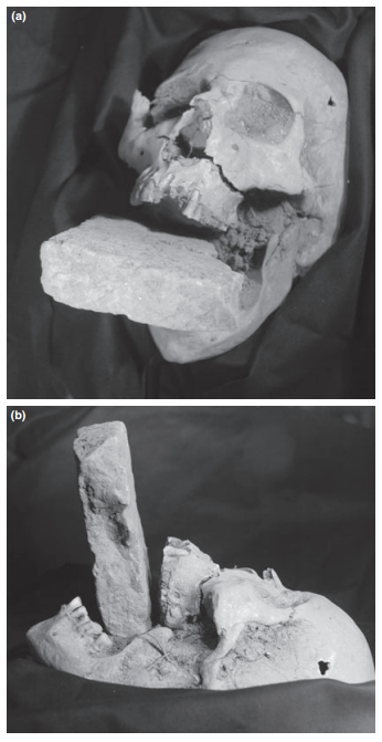 Positioning of the piece of brick placed in the skeleton's oral cavity.