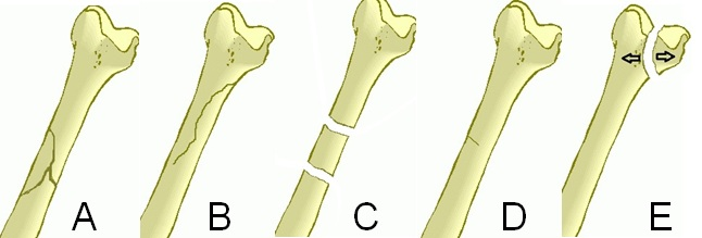 Fracture Types All Things Aafs