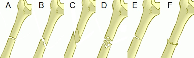 Quick Tips: Fracture Types – The Basics. – All Things AAFS!