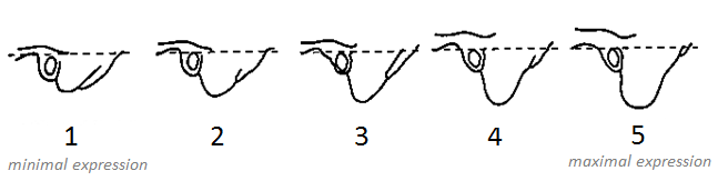 Figure 2: The scoring system for the size and volume of the mastoid process.